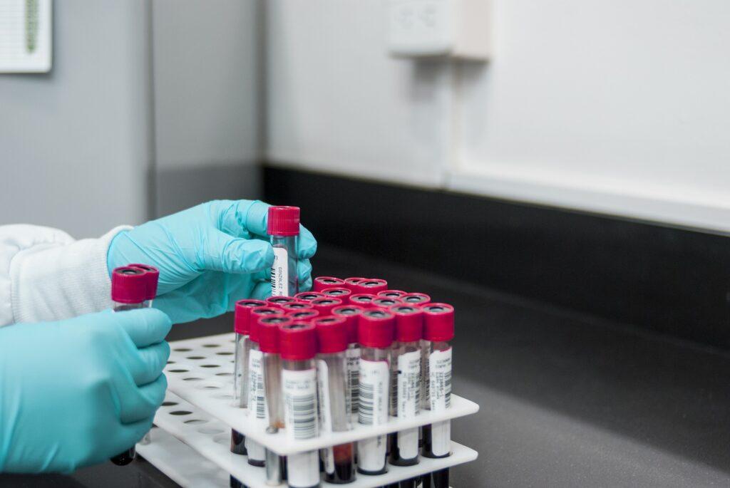 Wątroba - diagnostyka laboratoryjna